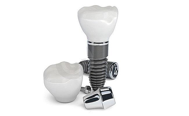 dentaledelmetall